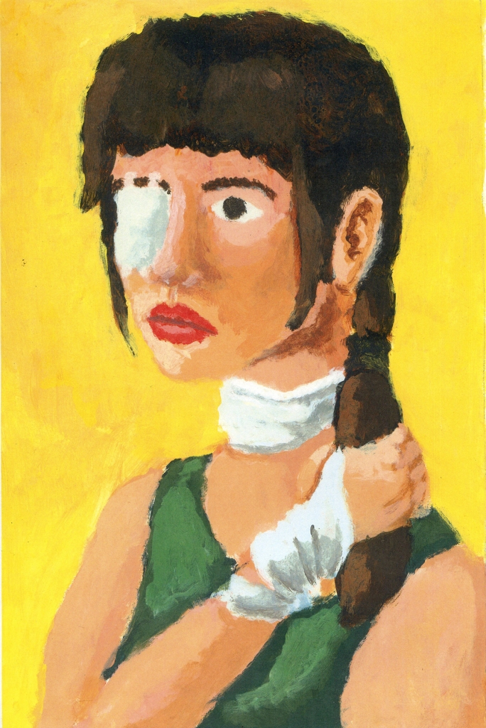 woman with injured eye and ponytail